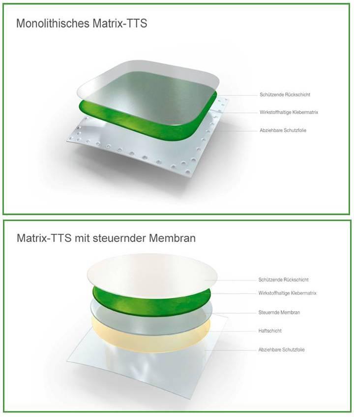 oberes Bild: Transdermales Therapeutisches System - einfachster Aufbau eines transdermalen Pflasters - Bild unten: Pflaster mit steuernder Membran