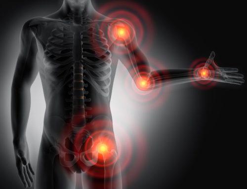 Rheumatoide Arthritis und Transdermale Applikation