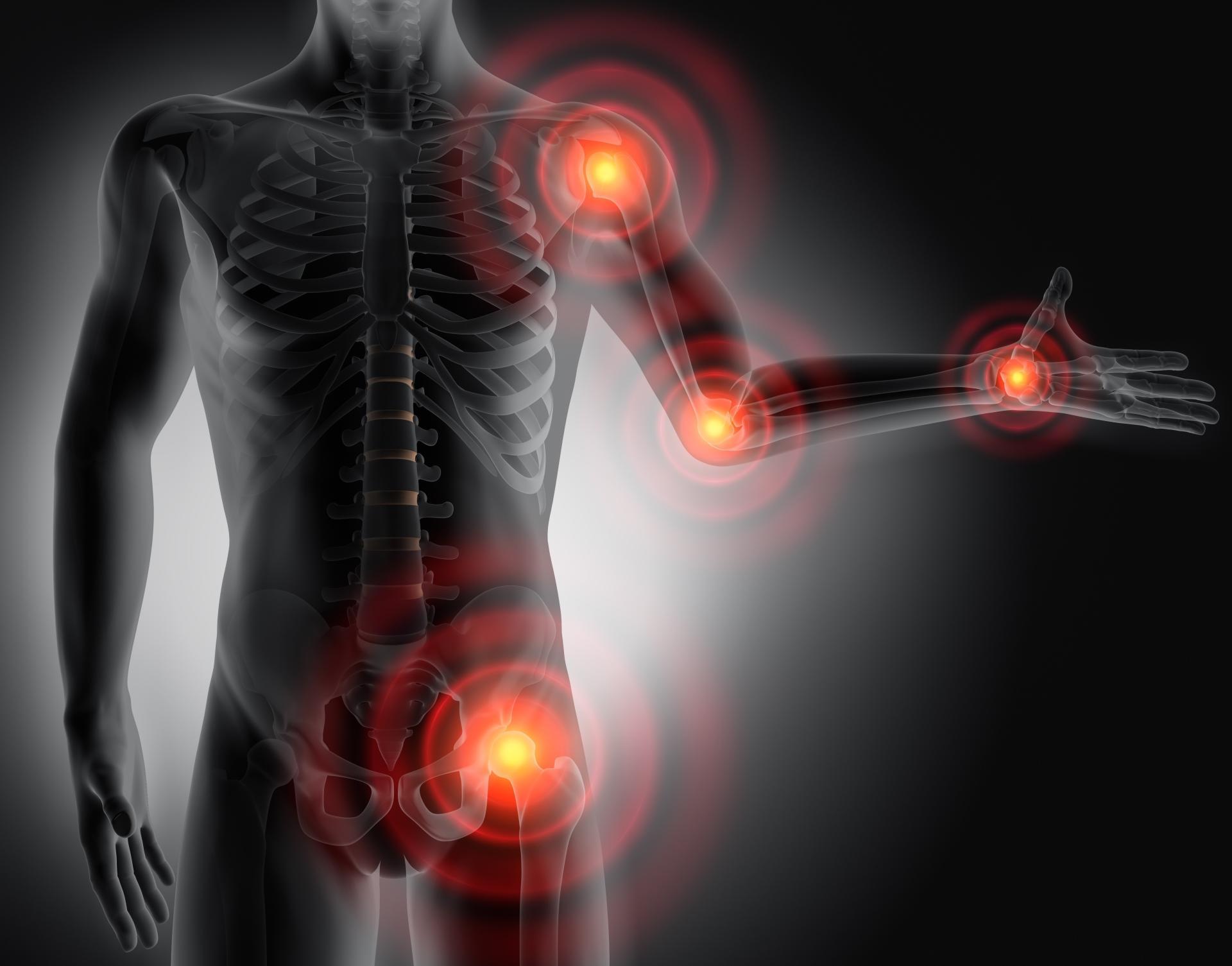 Rheumatoide Arthritis (RA) ist die häufigste chronisch entzündliche Gelenkerkrankung, die durch fortschreitende Gelenk- und Knochenzerstörung gekennzeichnet ist.